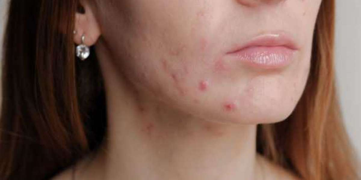 5 Best Tips To Get Rid Of Acne